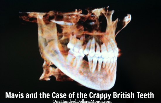 Mavis and the Case of the Crappy British Teeth