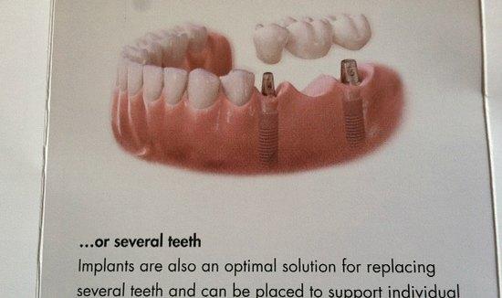 new-teeth-mavis