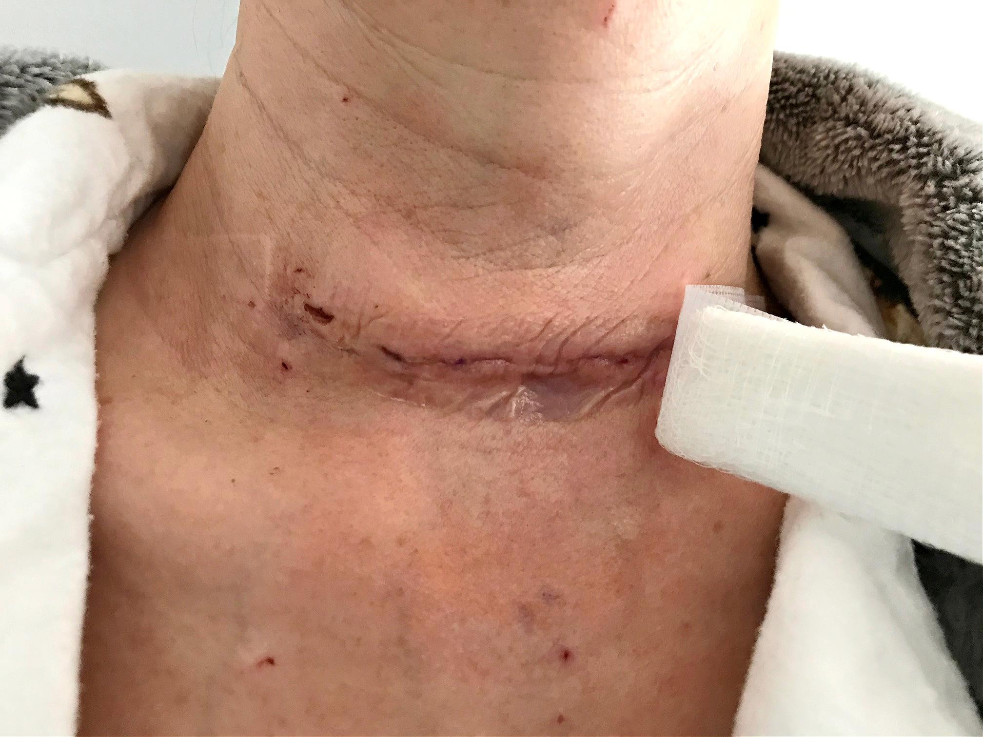 My Total Thyroidectomy 1 Week Post Op